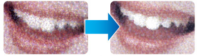 SP4 significantly reduces graininess in halftone areas and produces smooth skin tones.